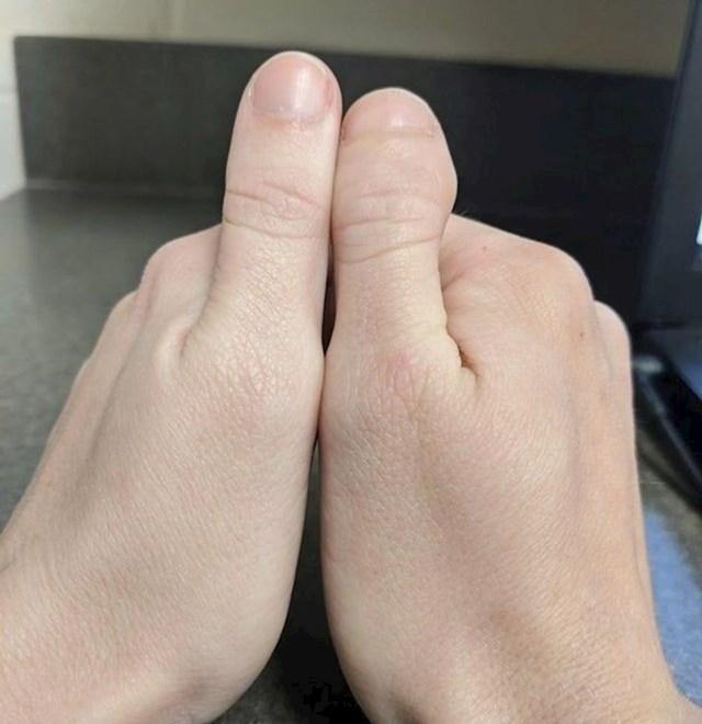 Na jednoj ruci palac, na drugoj ruci -nožni palac.