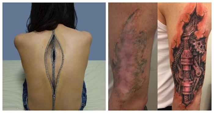 11 puta kada su tattoo majstori pretvorili ožiljke u umjetnost; sada ih vlasnici ponosno pokazuju!