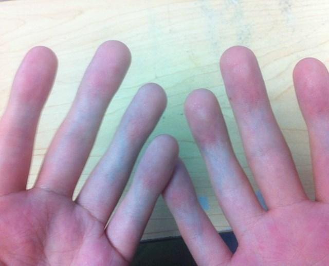 Tip nema otiske ni zglobove na prstima