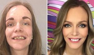 15 transformacija zbog kojih se ove žene sada osjećaju kao kraljice; nećete vjerovati svojim očima!