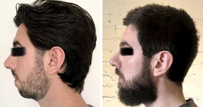 15 puta kada su muškarci pustili brade koje su ih transformirale do neprepoznatljivosti