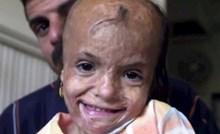 Imala je samo 5 godina kad je jedva preživjela eksploziju, njen današnji izgled je mnoge iznenadio