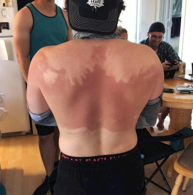 """""""Prijatelj nije htio nikoga zamoliti da mu leđa namaže kremom za sunčanje, evo kako izgleda rezultat njegove tvrdoglavosti."""""""