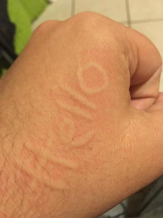 Ova osoba ima dermatografiju. Može pisati po svojoj koži.