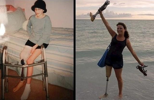 Žena se ponovno slikala 10 godina nakon što je pobijedila rak.