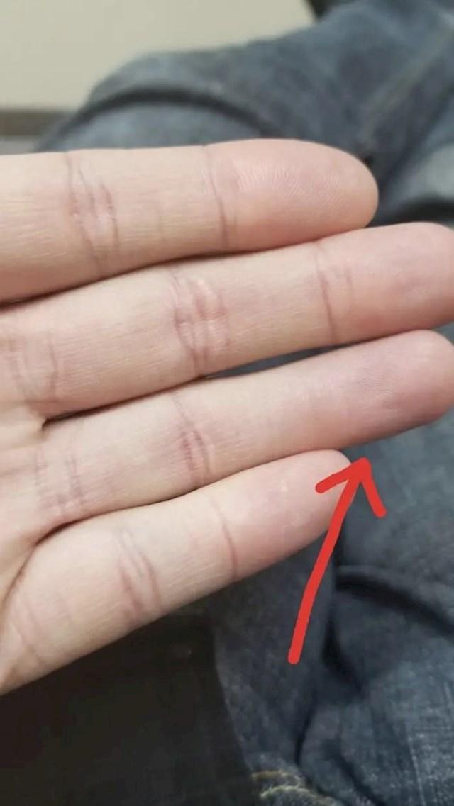Primjećujete li nešto čudno? Ovaj prst na gornjem dijelu nema one bore na mjestu gdje se savija.
