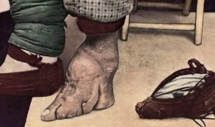 9 bizarnih tradicija kojih su se ljudi nekada davno držali kako bi drugima izgledali ljepše