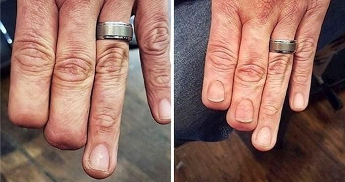 Tetovirali su se kako bi prekrili ili nadopunili ožiljke i nedostatke, rezultat izgleda nevjerojatno dobro