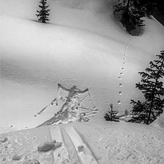 Ovdje se vidi što mu se dogodilo na skijanju.
