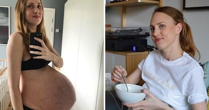 Mama koja je postala poznata zbog ogromnog trbuha otkrila je što se s njom dogodilo nakon trudnoće