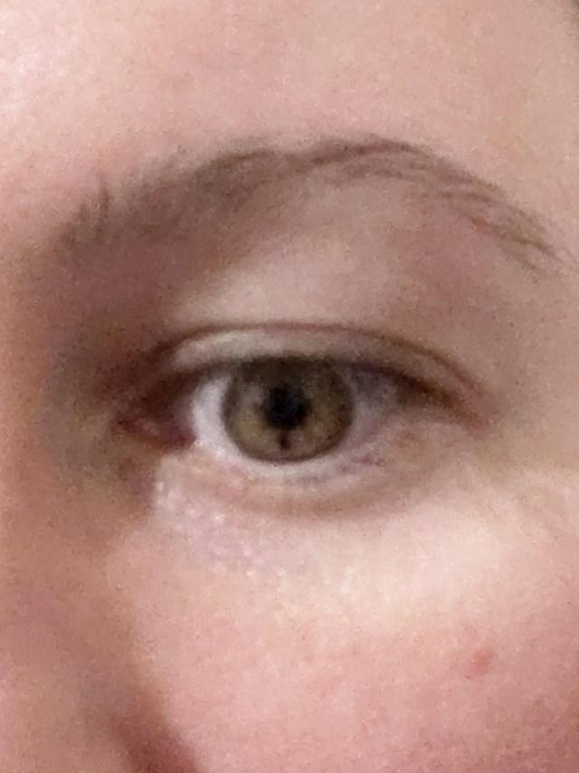 """Jeste li ikad vidjeli osobu s """"madežom"""" na oku?"""