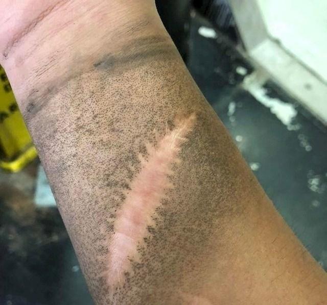 Na mnogim ožiljcima se znojne žlijezde ne oporavljaju. Zbog toga se prljavština ne zalijepi na koži.