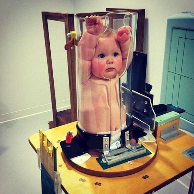 Bebama je nemoguće objasniti da se ne smiju pomicati tijekom slikanja na rendgenu. Evo kako se to rješava.