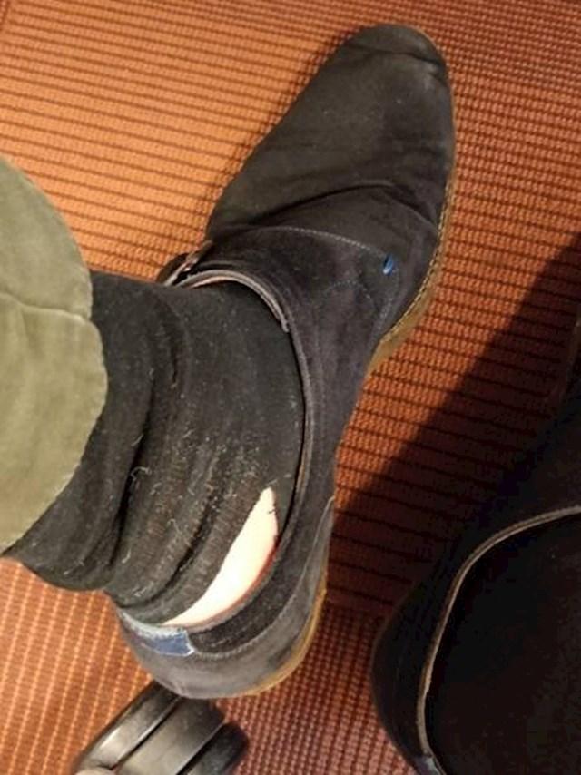 """""""Na poslu sam htio podići čarapu, a onda mi se dogodilo ovo..."""""""