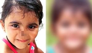 VIDEO Žena je posvojila djevojčicu kojoj su životinje pojele nos, pogledajte kako danas izgleda