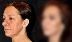 VIDEO Nos joj nije prestajao rasti, no onda je dobila operaciju koja joj je potpuno promijenila lice
