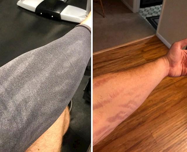 Na ovoj fotografiji se može dobro vidjeti da se koža na ožiljcima na znoji.