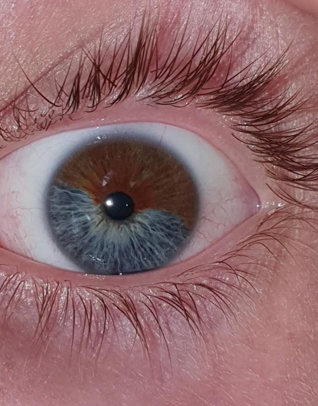 """""""Imam plavo-smeđe oči!"""""""
