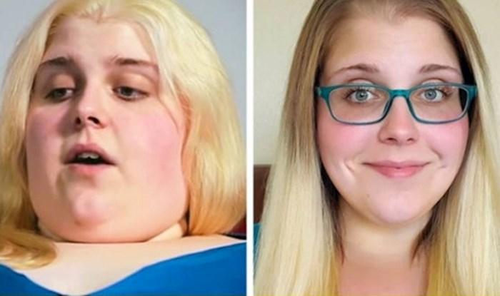 12 nevjerojatnih slučajeva kad su ljudi skinuli kilograme i promijenili se do neprepoznatljivosti