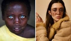 20 posebnih ljudi koji su svojim neobičnim izgledom oduševili svijet