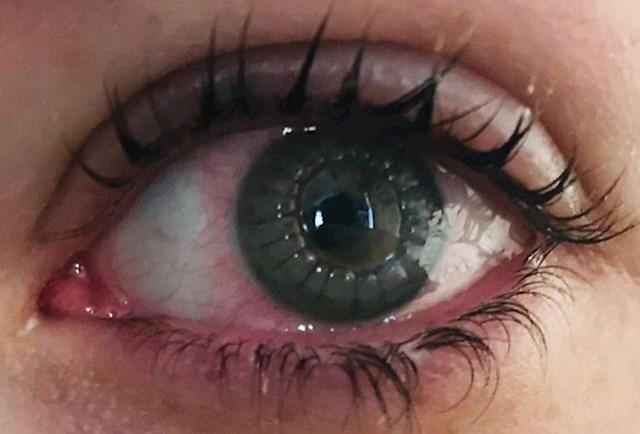 """""""Ovako mi je izgledalo oko nakon transplantacije rožnice. Ako malo bolje pogledate, vidjet ćete šavove."""""""