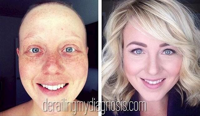Stephanie je sretna mama koja je 5 puta pobijedila rak.