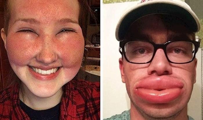 Sprdali su se na vlastiti račun i na društvenim mrežama pokazali zašto mrze alergije