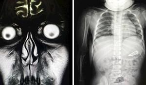 15 rendgenskih slika koje su otkrile zanimljive i potpuno neočekivane detalje