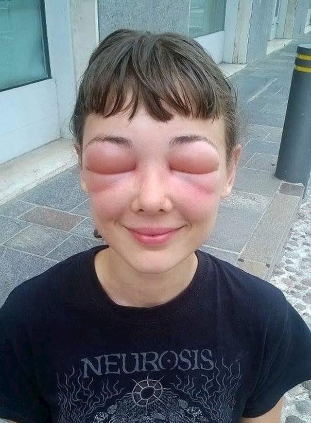 """""""Ovo je bio dan kad sam shvatila da sam alergična na pčele."""""""