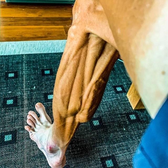 Ovako je izgledala noga slovenskog biciklista Janeza Brajkoviča nakon utrke.