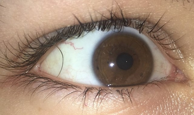 """""""Imam li trepavicu u oku?"""""""