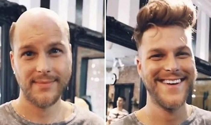 40 muškaraca slikalo se prije i nakon ugradnje tupea, promjene u njihovom izgleda su fascinantne