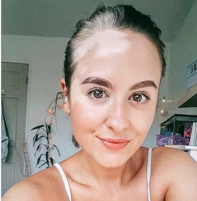 Možda ste na prvi pogled mislili da joj je glava obasjana suncem, no ova djevojka zapravo ima vitiligo, odnosno bijele mrlje na koži i kosi.