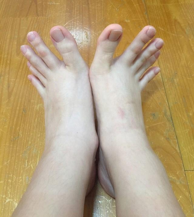 Jeste li ikad vidjeli veće prste na nogama?
