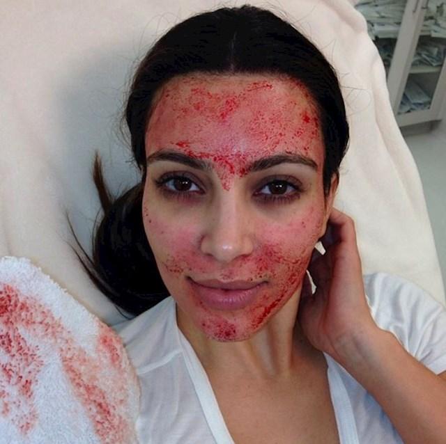"""Kim Kardashian - """"vampirski"""" tretman lica unošenjem vlastite krvi pod kožu lica"""