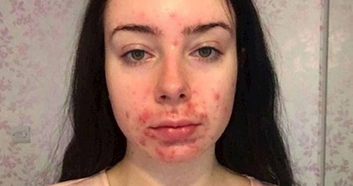 Dečko joj je govorio da se ne slika zbog akni, evo kako se promijenila kad ga je ostavila