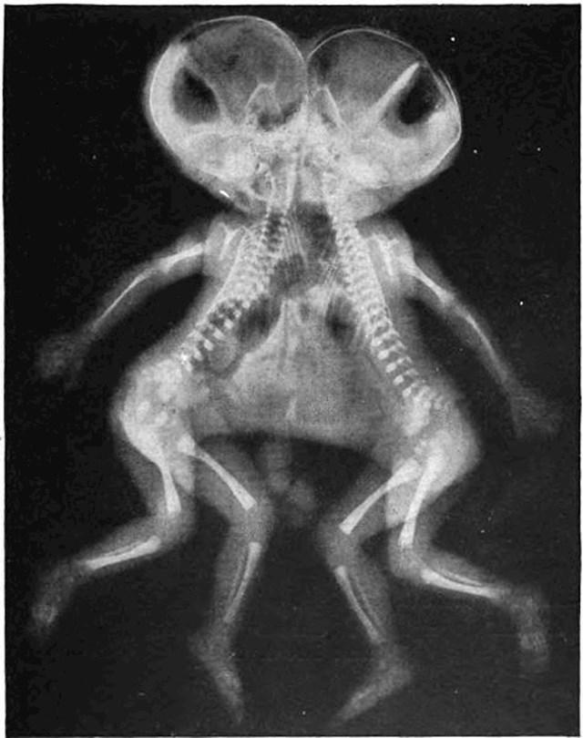 Rendgenska slika sijamskih blizanaca