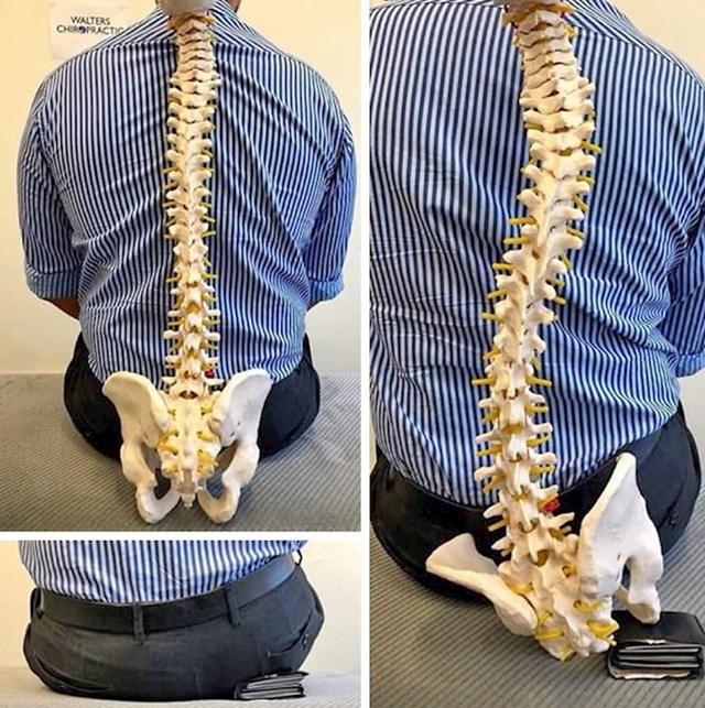 Ovaj lik je otkrio zbog čega zapravo ima probleme s leđima... ;)