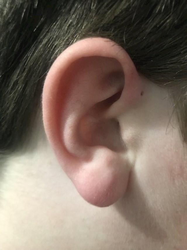 """""""Od rođenja imam rupicu iznad uha."""""""
