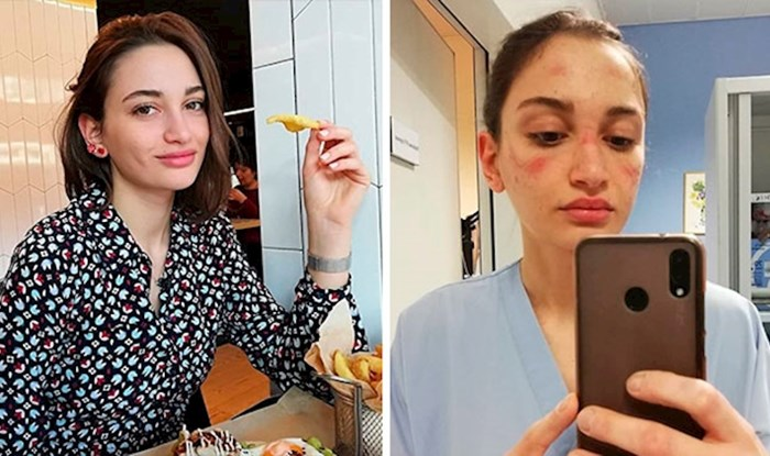 Medicinska sestra iz Italije slikala se na poslu i pokazala koliko je trenutno teška situacija