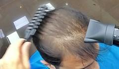 FRIZER ČAROBNJAK 😲 Proćelavi mladoženja došao na frizuru, pogledajte kako je na kraju izgledao