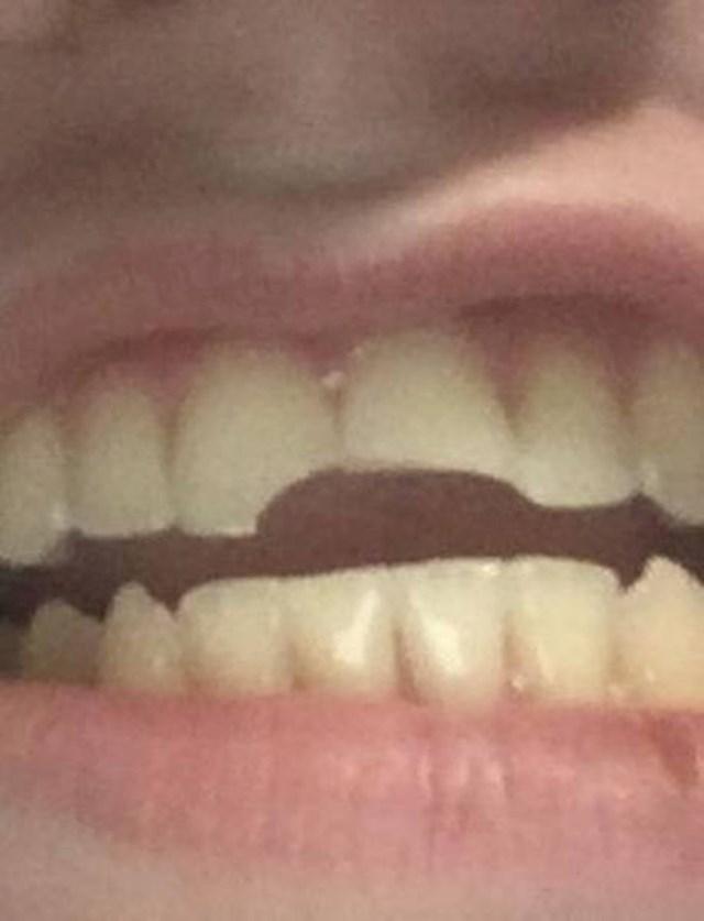 """Razbio sam se kad sam krenuo na WC, slomio sam oba prednja zuba."""