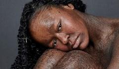 Žena kojoj se koža guli svaka dva tjedna vjerojatno je prvi fotomodel s ovim problemom