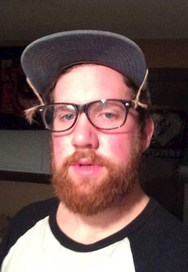 """""""Oporavljao sam se od operacije nosa pa nisam smio nositi naočale. Uspio sam namjestiti da ih moja kapa drži u zraku."""""""