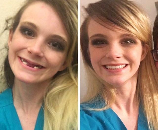 """""""Oporavljala sam se od bulimije. Evo kako izgledam sad nakon što sam sredila zube."""""""