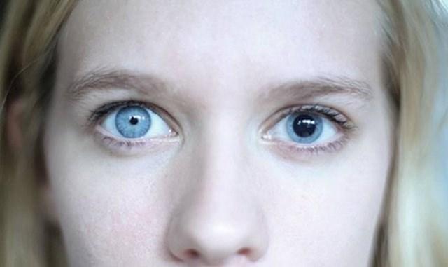 Ova djevojka ima poremećaj zbog kojeg su joj zjenice različite veličine.