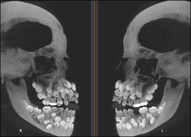 Ovo je rendgenska slika osobe koja ima višestruku hiperdonciju (višak zubi).