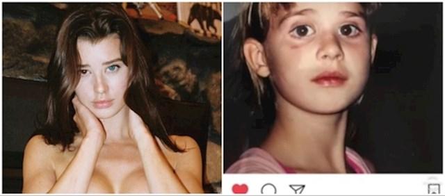Ova Instagram manekenka je dugo glumila da zbog heterokromije ima oči različitih boja. Zapravo je na jednom oku nosila leću u boji, sve dok njen otac nije objavio sliku iz djetinjstva kojom je otkrio da je sve bila laž. Nakon toga je otišla na riskantnu operaciju u Indiji kako bi promijenila boju jednog oka.