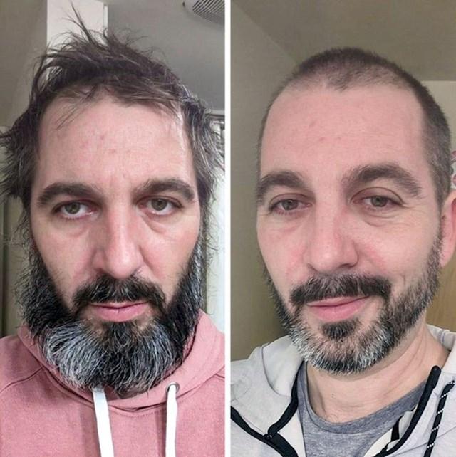 """""""Prije i nakon što sam počeo liječiti svoju depresiju"""""""