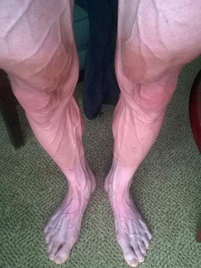 Ovako izgledaju noge biciklista nakon što je vozio Tour de France.